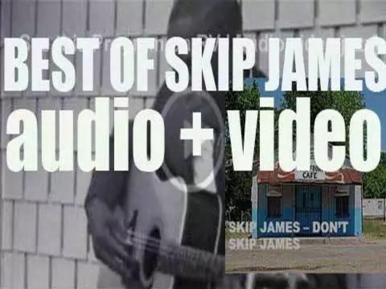 We remember Skip James. 'Don't Skip James'