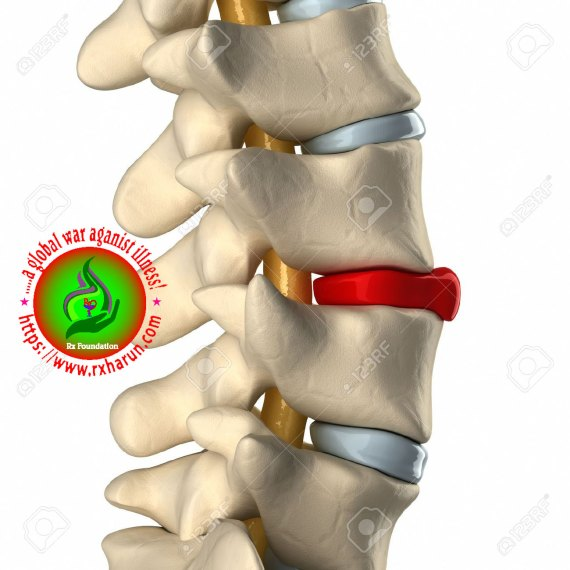 Causes of Spondylolisthesis