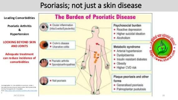 psoriatic arthritis-symptoms