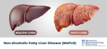 Fatty Liver; Causes, Symptoms, Diagnosis, Treatment