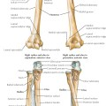 Radial and ulnar shaft fractures