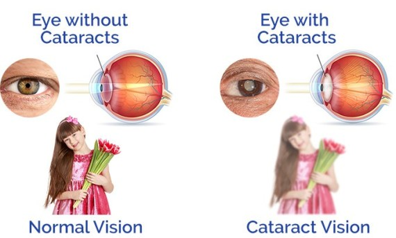 Cortical cataracts