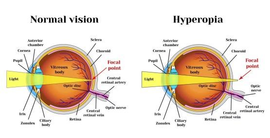 Hyperopia és glaucoma - Hyperopia kezelés