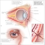 Swollen Red Eyes From Crying, Causes, Treatment