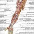 What Is Triceps Tendinitis