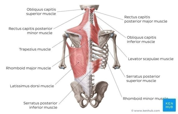 What does a strained trapezius feel like?