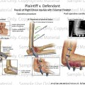 Elbow Joints Injuries