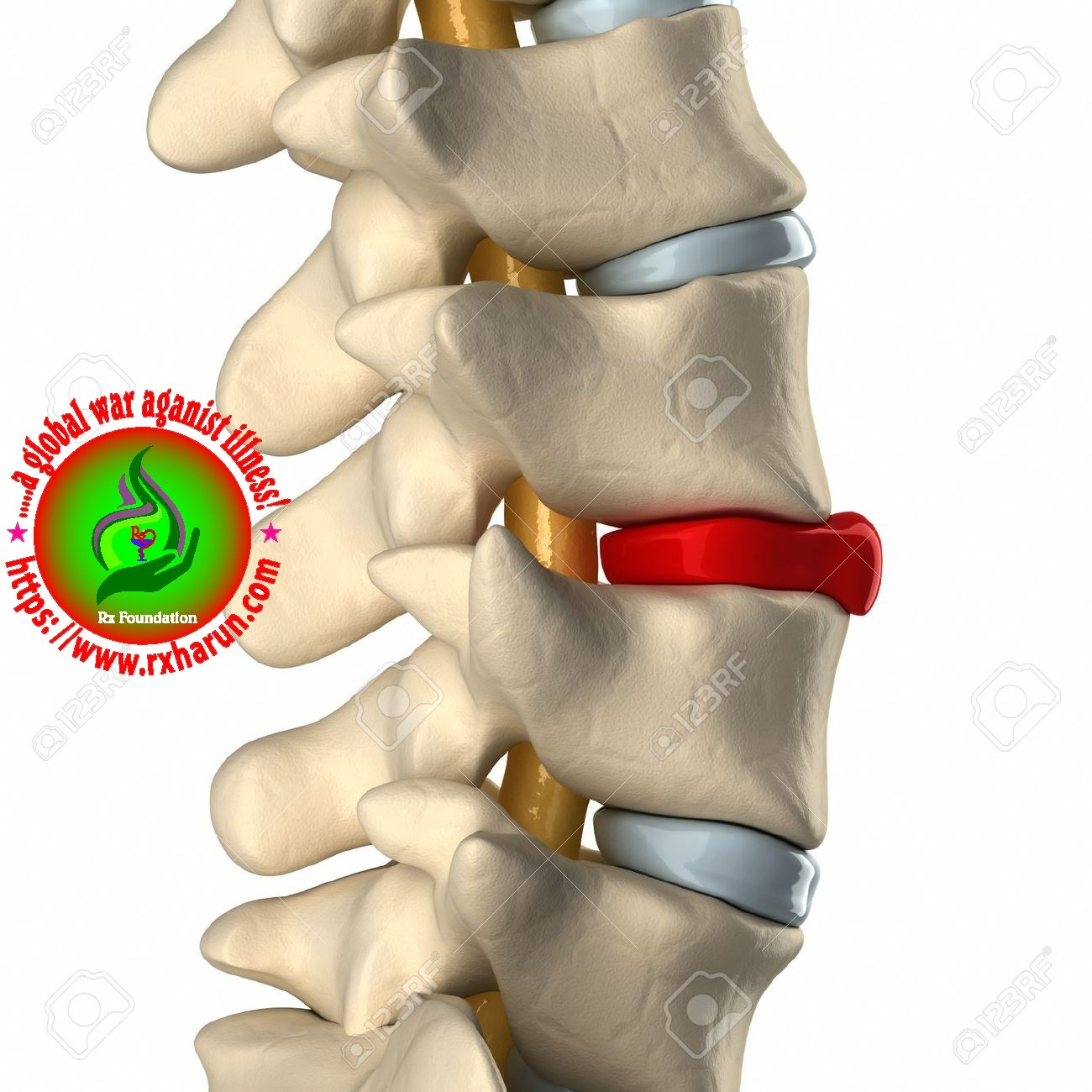 C4 and C5 Disc Herniation, C4 and C5 Disc Herniation – Causes, Symptoms, Treatment,