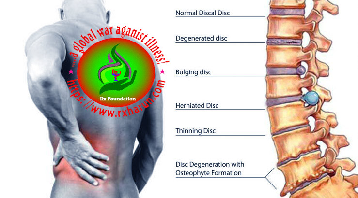 C6 and C7 Disc Herniation