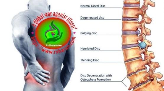Cervical Disc Herniation