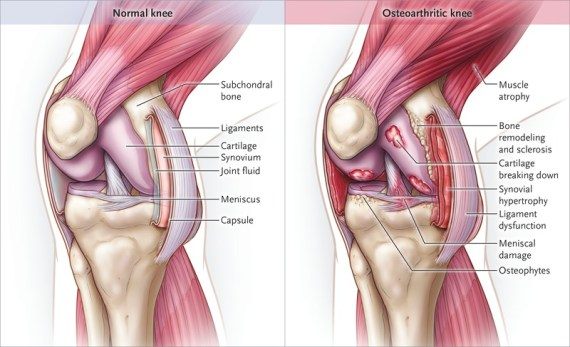 Knee Joints Osteoarthritis