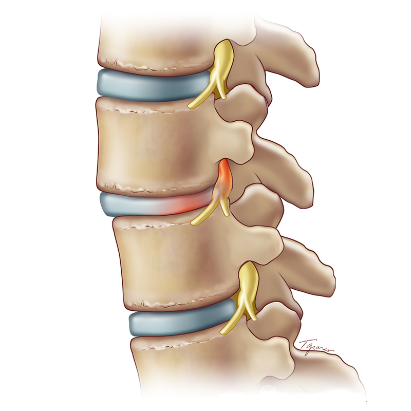 Spondylolisthesis and Pars Fractures