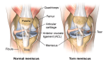 Medial Meniscus Injury – Causes, Symptoms, Treatment