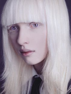 albinos on pinterest albinism albino model and white lions