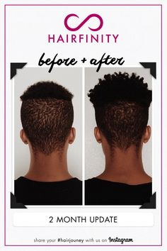 before and after hair growth tips achieve longer stronger fuller healthier hair with