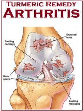 Tips to use Turmeric for Arthritis and chronic pain. I should try this