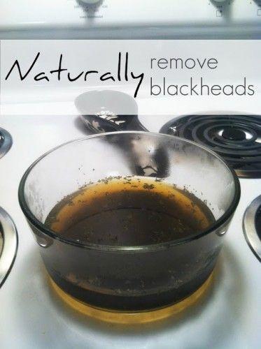 Naturally remove Blackheads