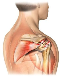 The 4 Signs of a Torn Rotator Cuff: A rotator cuff tear is an injury to the tendons of the shoulder joint.: