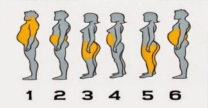 Body fat distribution differs from person to person and as