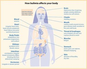 Diagram of how bulumia affect the body Bulumia is not