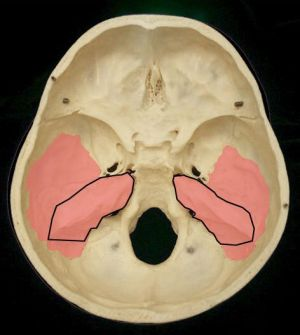 Petrus portion: one major part of temporal bone  In the