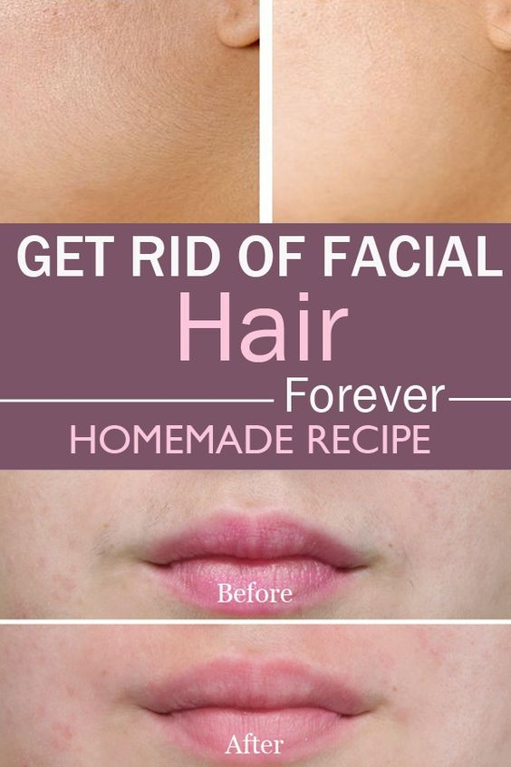 How to Get Rid of Unwanted Facial Hair: