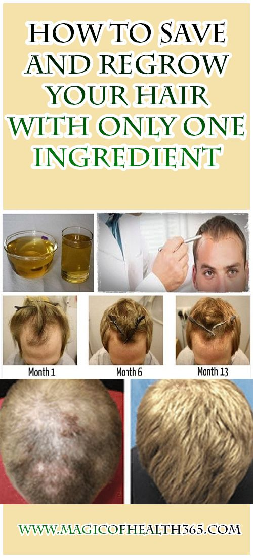 How To Save And Regrow Your Hair With Only One Ingredient: