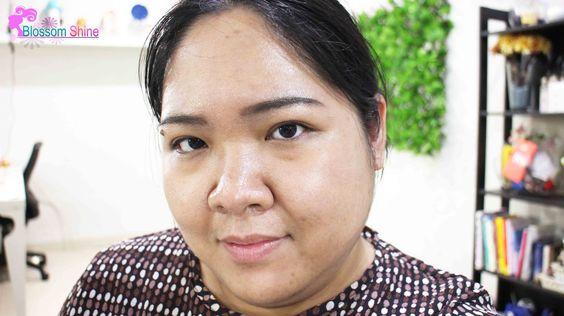 Hello, meet my bare face. Disini aku hanya menggunakan skincare untuk kulit berjerawat