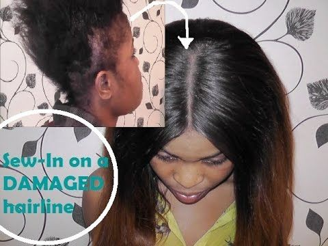 sew in on damaged hairline how i do it hair wigs weaves tutorials and tips pinterest