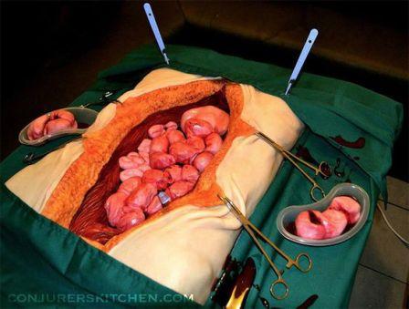 Surgery Cake: