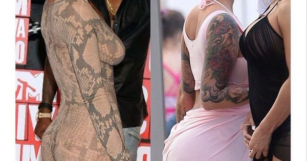 And Amber Rose Surgery After