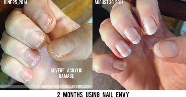 Nail Envy Does It Work Nail Envy Makeup And Nails