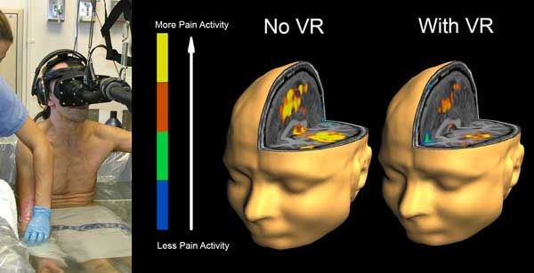VR And No VR Treatments Compared Using FMRI SnowWorld Puts Pixar Like Animation To Medical Use