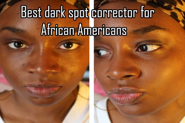 Best Dark Spot Corrector For African Americans Head To