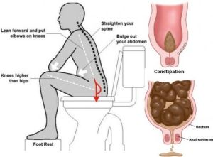 How To Poop When You Can't Without Any Laxatives | Health