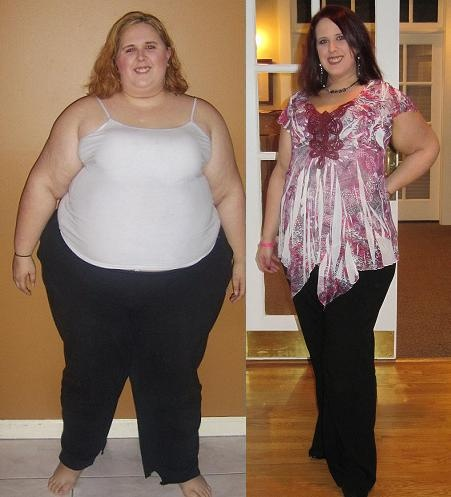 17 Best images about Gastric Sleeve on Pinterest | Before ...