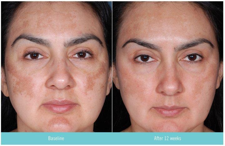 Hydroquinone retin a greatly improved skin tone color