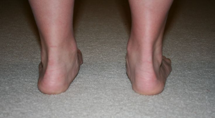 I found out my feet over pronate when i walk this article