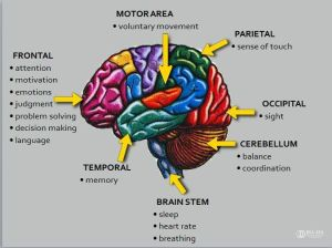 1000 images about Traumatic Brain Injuries (TBI) Right Brain Stroke on Pinterest