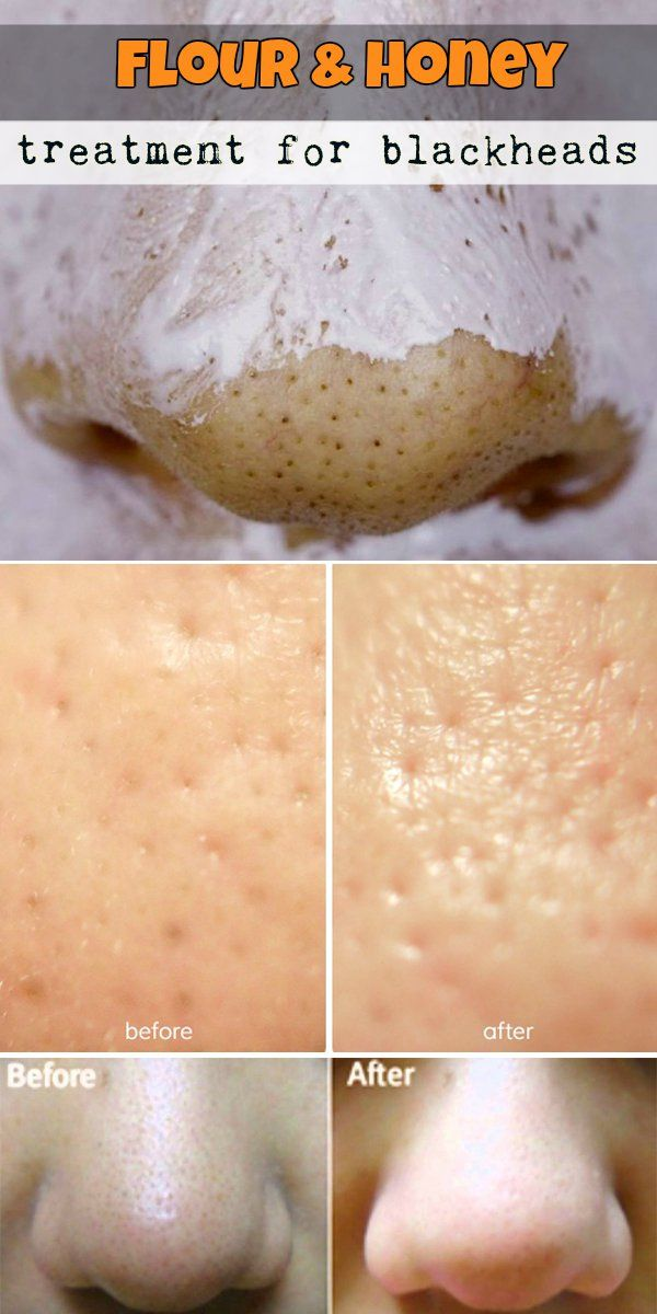 Flour and honey treatment for blackheads