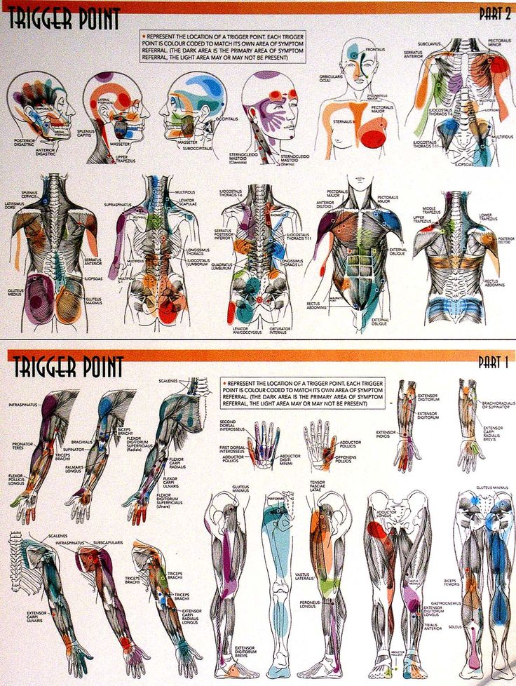 trigger points Check out the pdf documents associated