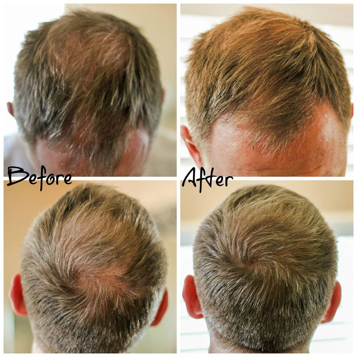 Hair Thinning and Hair Loss What's a Man To Do Before