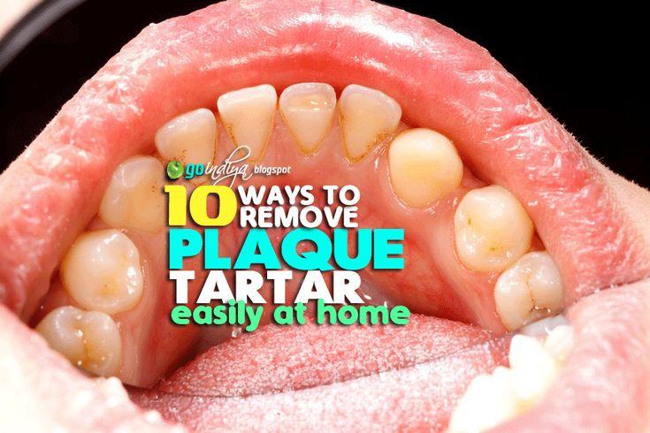 how to get rid of tartar in teeth