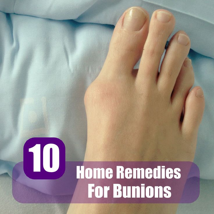 how to reduce bunion size naturally