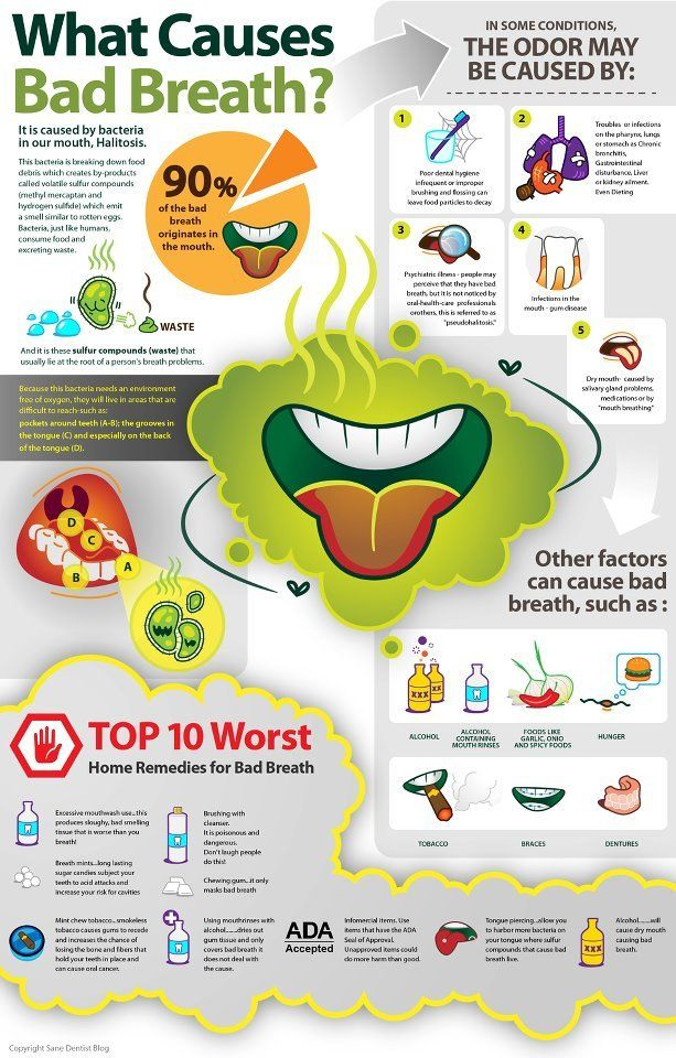 What causes bad breath? Dental Posters Pinterest Bad