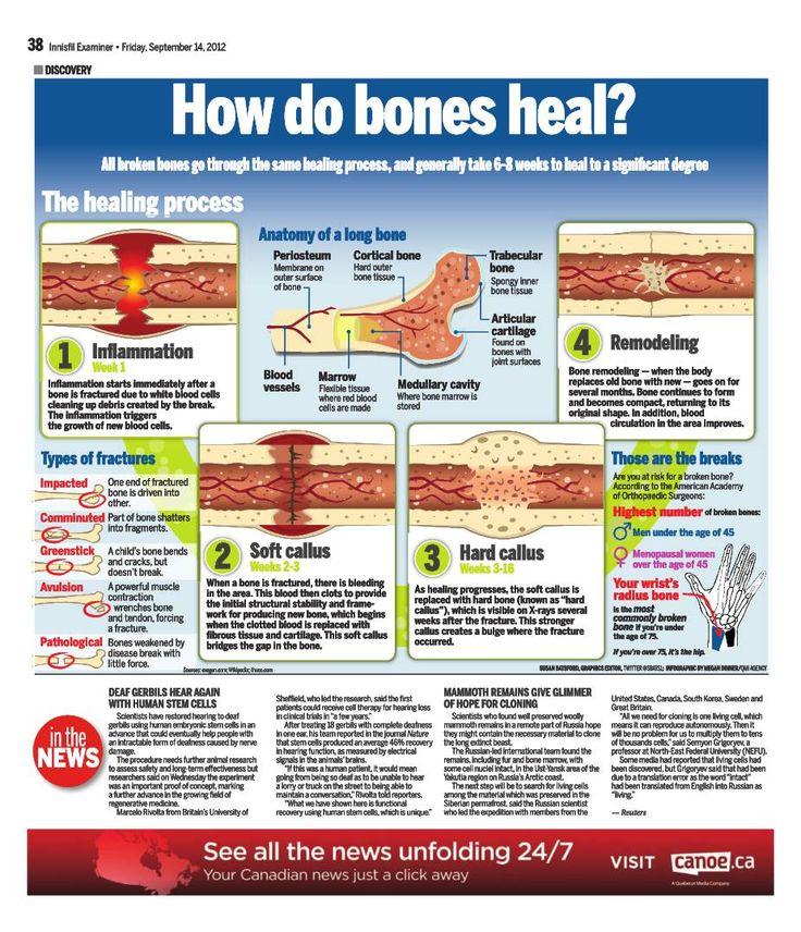 How do bones heal very cool explanation of how bones heal