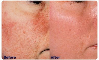 Cosmetic Laser Treatments For Facial Wrinkles In Hempfield