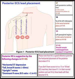 17 Best images about ECGEKG Study Memo Cards on Pinterest | Heart rate, Kitty and Sisters