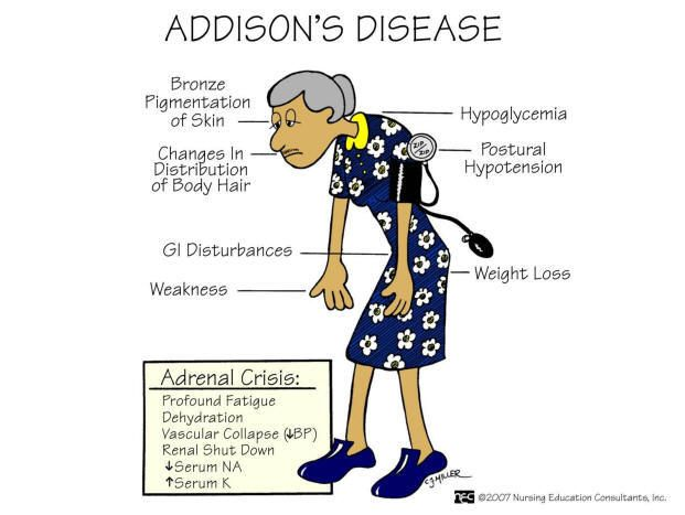 Image result for ADDISON'S DISEASE
