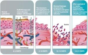 cancer pathophysiology diagram   Grad School FNP